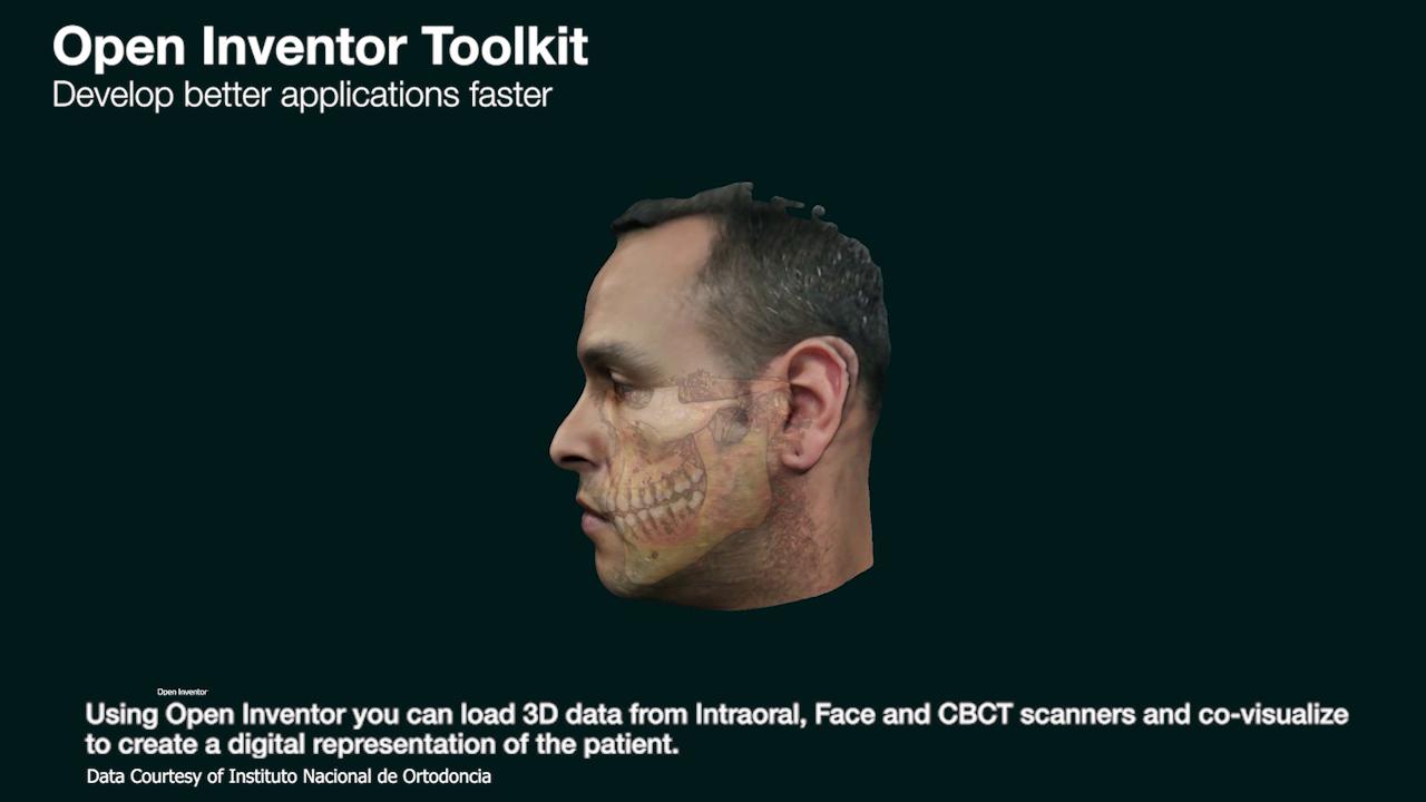 Multimodal Dental Imaging