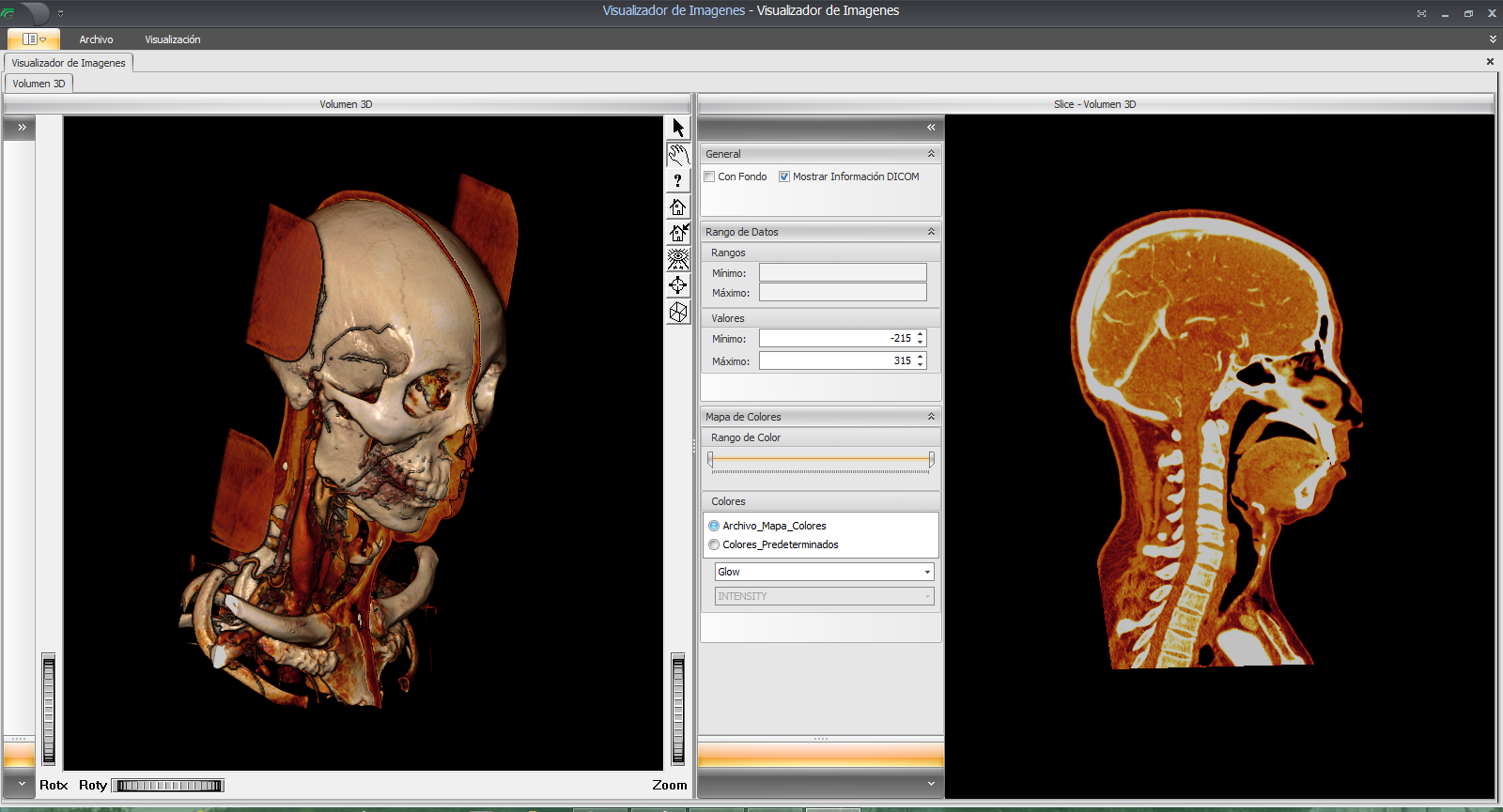 SYAC-PACS-OpenInventor-Medical-3D-Toolkit