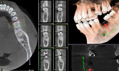 OIV_Dental_Implant_3