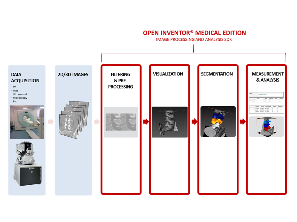 Open Inventor Medical toolkit - Provide advanced image analysis capabilities - Open Inventor Medical Edition