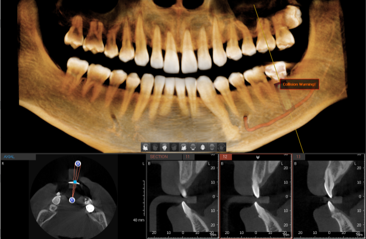 Ez3D-i, dental software for 3D diagnostic imaging (Ewoosoft)