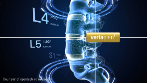 vertaplan planning software for spine treatment (spontech)